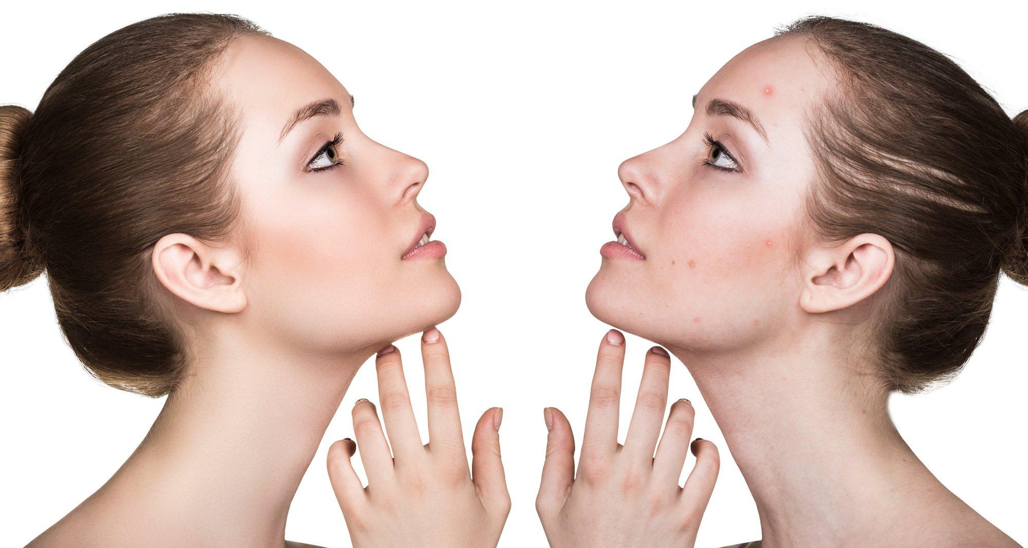 Comparison portrait of problematic skin