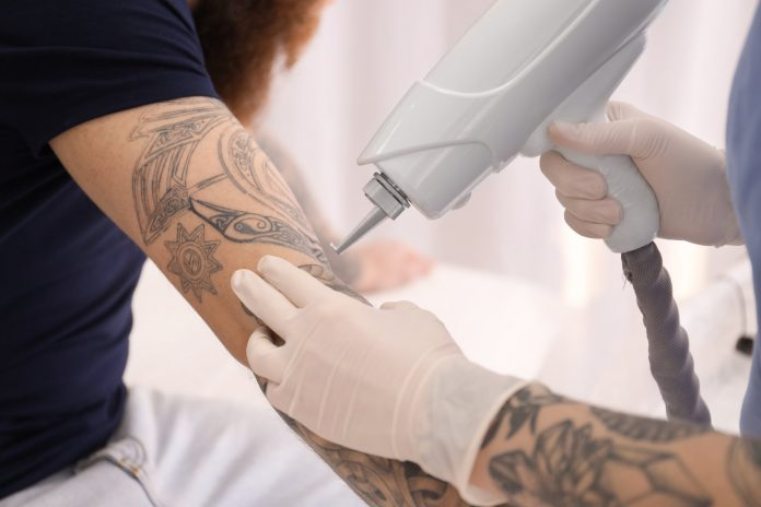 how to safely remove a tattoo